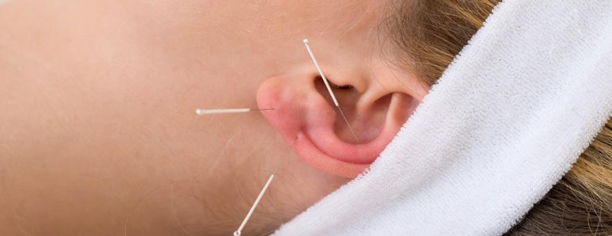 acupuncture miami